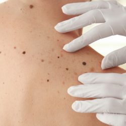App developed for patients to detect melanoma warning signs -