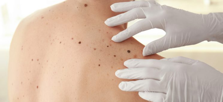 App developed for patients to detect melanoma warning signs