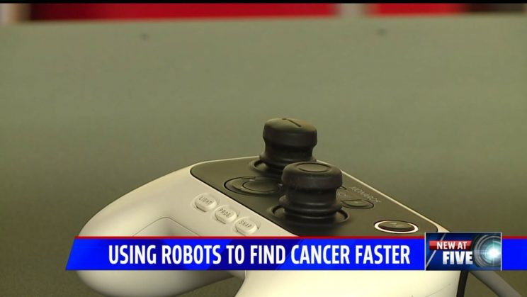 Robotic technology will help Franciscan Health doctors spot lung cancer more accurately -