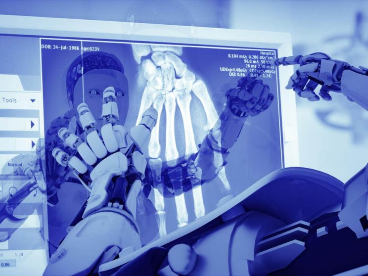 AI may be the future of radiology as clinicians struggle to meet demand -