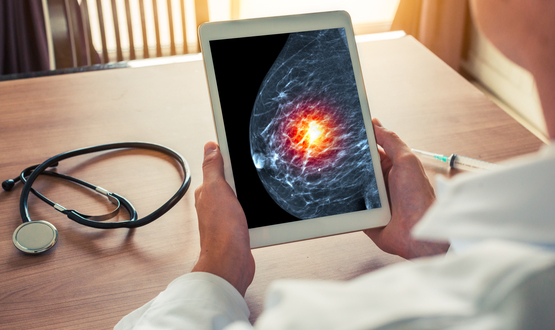Two trusts trial AI to diagnose breast cancer sooner