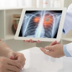 New £11m programme to explore AI in lung cancer diagnosis -